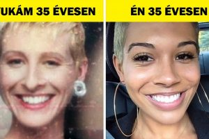 8 oka annak, hogy ugyanabban az életkorban fiatalabbnak nézünk ki, mint a szüleink
