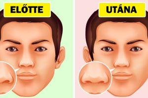 Miért nem csak illetlen az orrodat piszkálni, hanem ártalmas is lehet