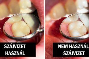 7 napi szokás, amelyek elszínezik a fogaidat