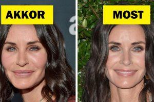 """10 híresség osztja meg az okát annak, hogy miért mondtak """"nemet"""" a plasztikai műtétekre, még azok is, akik már feküdtek kés alá"""