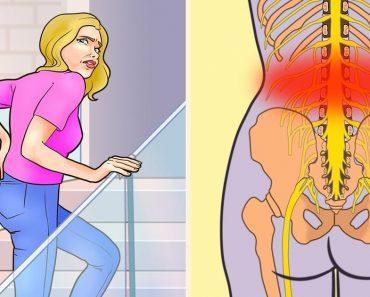 7 dolog, ami derékfájást okozhat, és hogyan kerüljük el őket