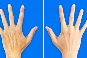 5 titok, hogy a kezeidet 10 évvel fiatalabbá tedd