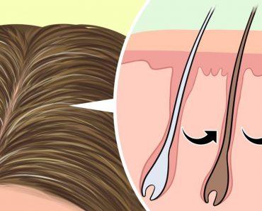 Az őszülés visszafordítható, és itt van, mit tehetsz, hogy visszaadd a hajad színét